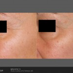 resurfacing treatment before and after