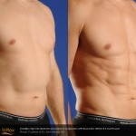 smartlipo treatment before and after