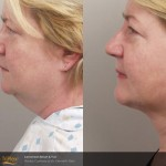 smartlipo chin treatment before and after