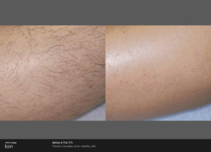 Laser Hair Removal North Dallas Cernero Surgery & Aesthetics